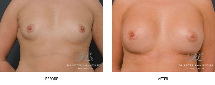 breast augmentation surgery - before and after - image 001
