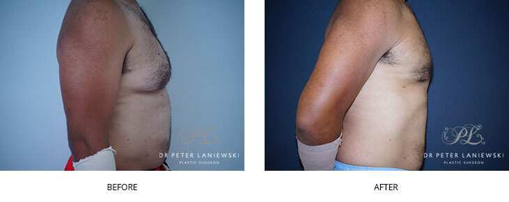 Male breast reduction before and after 01, side view