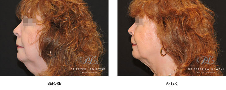liposuction before and after - image 001 - neck lift