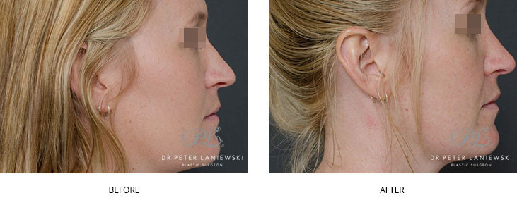 rhinoplasty before and after - image 009 - non-surgical rhinoplasty