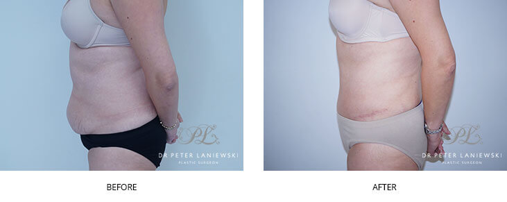 Patient before and after tummy tuck, photo 10