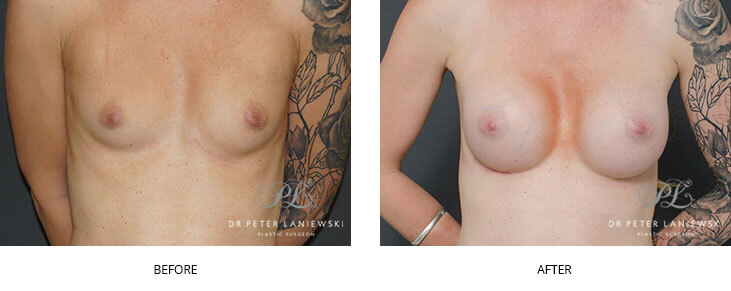 breast implants sydney - before and after - image 010