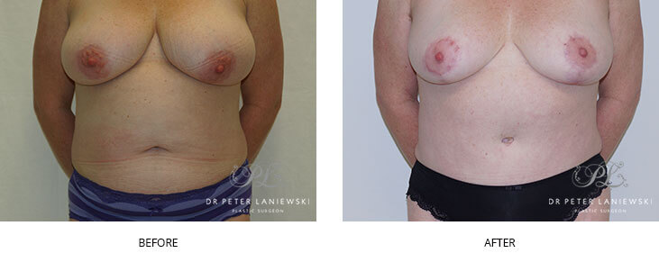 Tummy tuck surgery, photo 12, patient before & after procedure, Dr Laniewski