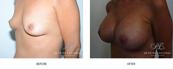 breast implants sydney - before and after - image 012