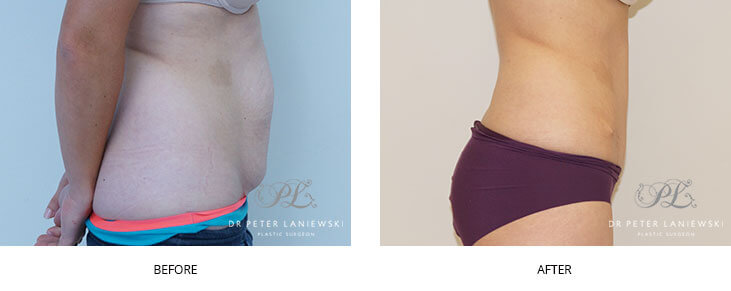 Patient before & after abdominoplasty, photo 13