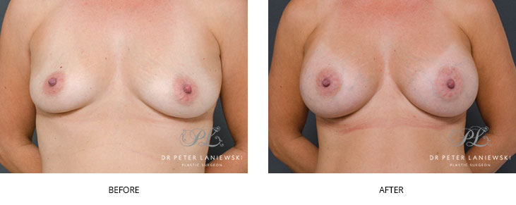 breast implants sydney - before and after - image 013