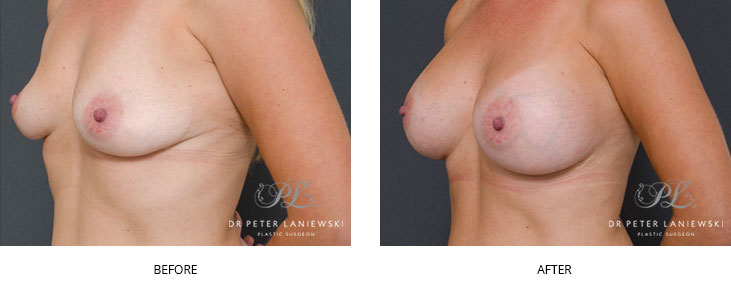 breast implants sydney - before and after - image 014