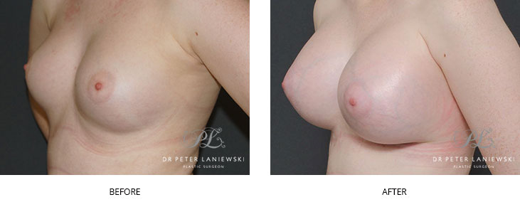 breast augmentation surgery - before and after - image 002