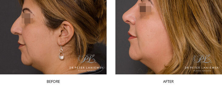 rhinoplasty before and after - patient 04, image 002 - nose jobs