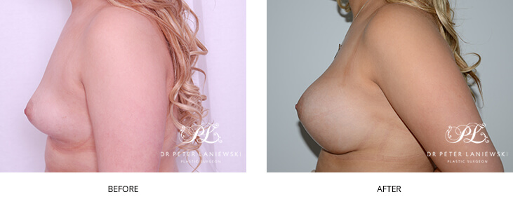 Breast augmentation with Dr Laniewski, before and after photo 23