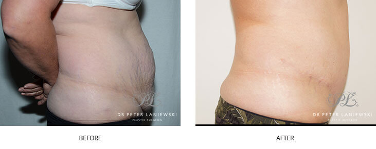 Abdominoplasty patient, photo 03, before & after