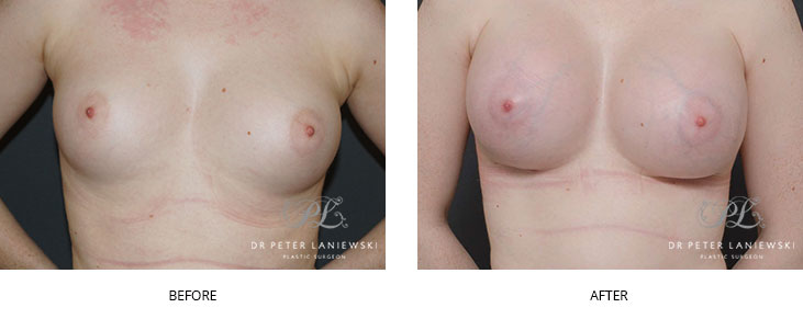 breast augmentation surgery - before and after - image 003