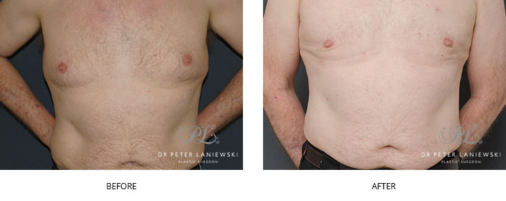 male liposuction before and after - image 003