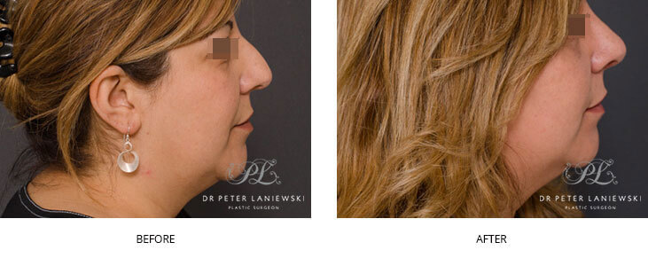 rhinoplasty before and after - patient 04, image 001 - side view