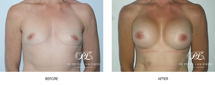 Breast augmentation surgery before and after 31, Dr Peter Laniewski Sydney
