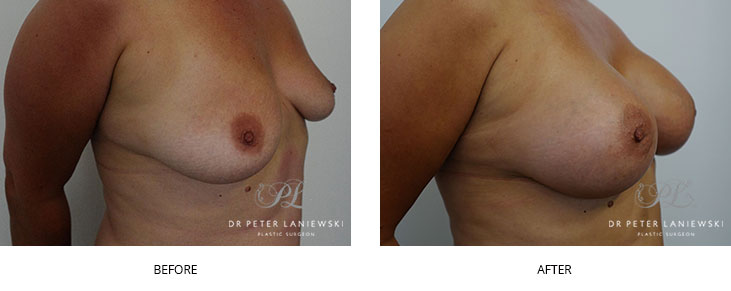 breast augmentation surgery - before and after - image 004