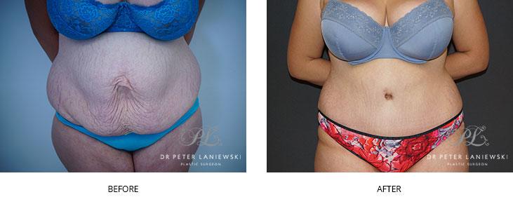 Tummy tuck patients, photo 05, Dr Laniewski