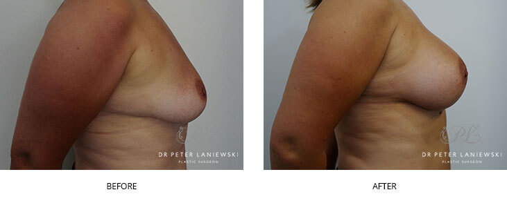 breast augmentation sydney - before and after - image 005