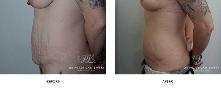 Abdominoplasty photo 06, before & after gallery, side view