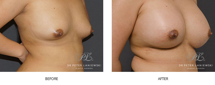 breast augmentation sydney - before and after - image 006