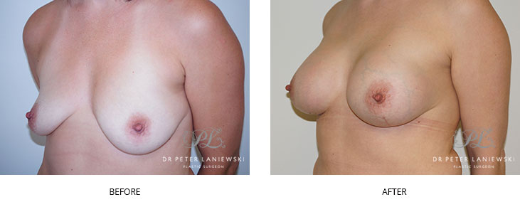 breast lift before and after - image 006