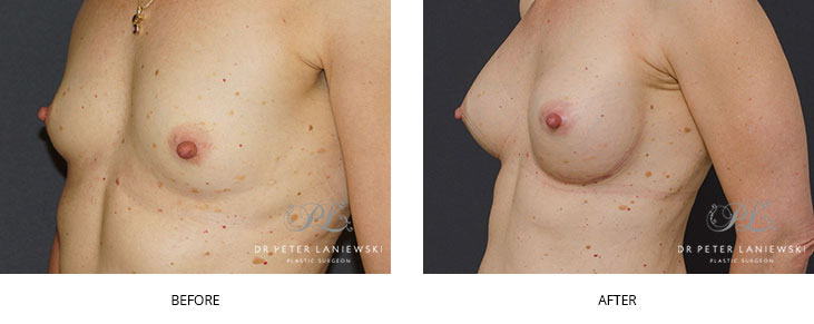 breast augmentation sydney - before and after - image 008