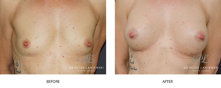 breast augmentation sydney - before and after - image 009
