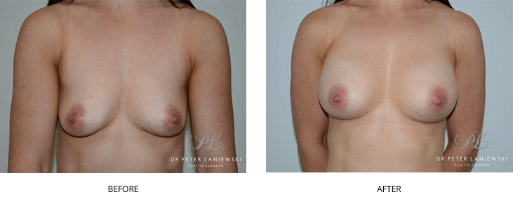 breast augmentation before and after - image 003