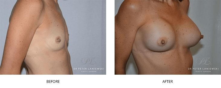 breast augmentation before and after - image 004
