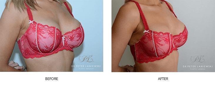 breast bar1