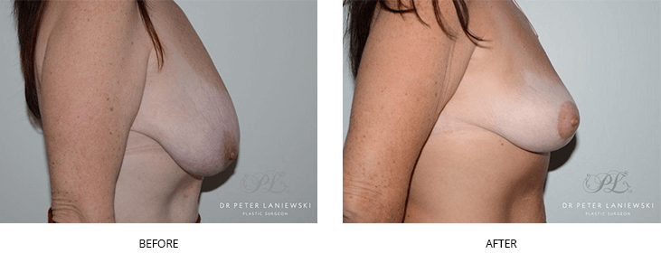 breast lift surgery before and after gallery - image 001