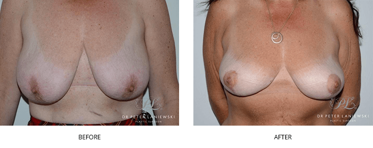 breast lift surgery before and after gallery - image 002