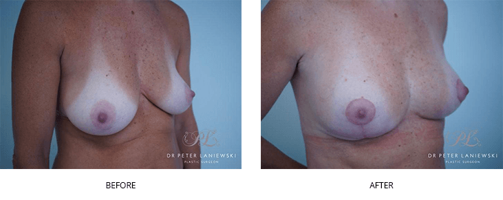 breast lift surgery before and after gallery - image 003