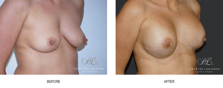 breast reconstruction before and after - image 001
