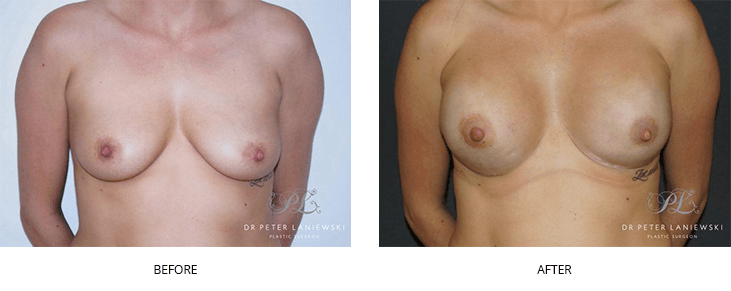 breast reconstruction before and after - image 002