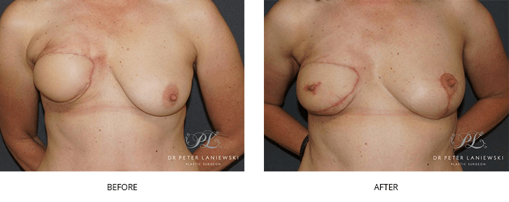breast reconstruction before and after - image 003