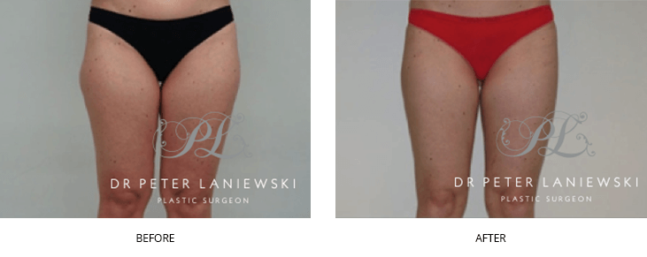 liposuction before and after - image 001 - thigh lift