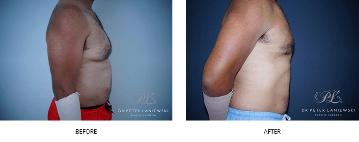 male liposuction before and after - image 002 - collage