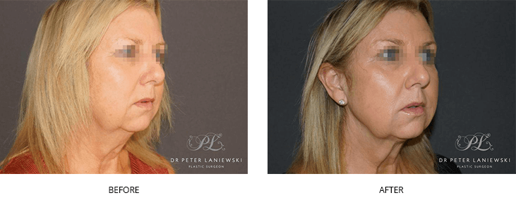 liposuction before and after - image 003 - neck lift