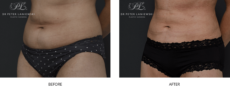 liposuction before and after - image 011