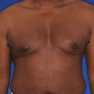 Male breast reduction gallery, after surgery image