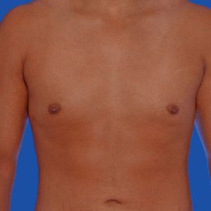 Male breast reduction before and after, photo 2b