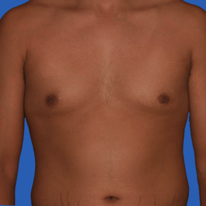 Male breast reduction before and after, photo b, before