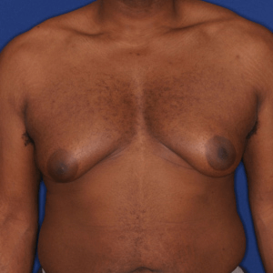 Male breast reduction before and after, before surgery