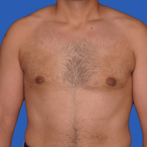 Male breast reduction before and after, photo 02c