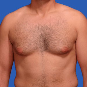Male breast reduction before and after, patient c, before