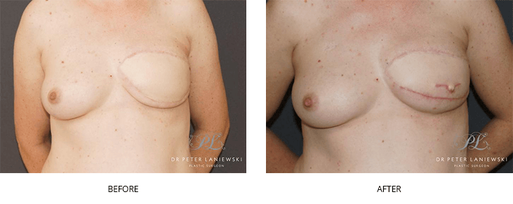 breast nipple reconstruction before and after - image 001