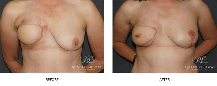 breast nipple reconstruction before and after - image 002