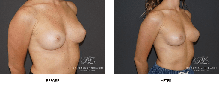 breast nipple reconstruction before and after - image 003