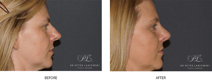 nose job before and after - image 013 - female patient, side view